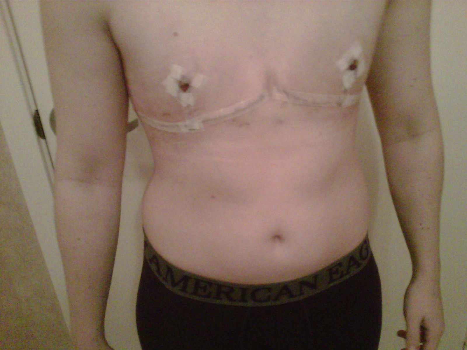 Sunken Chest Surgery
