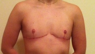 1 month post-op top surgery