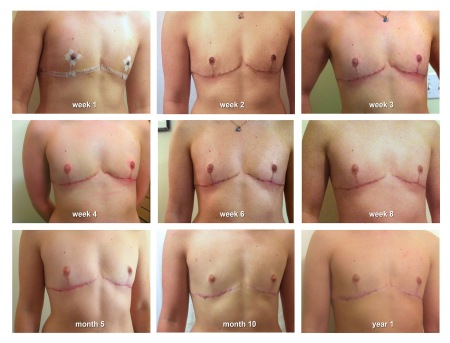 Top Surgery 1 Year Timeline