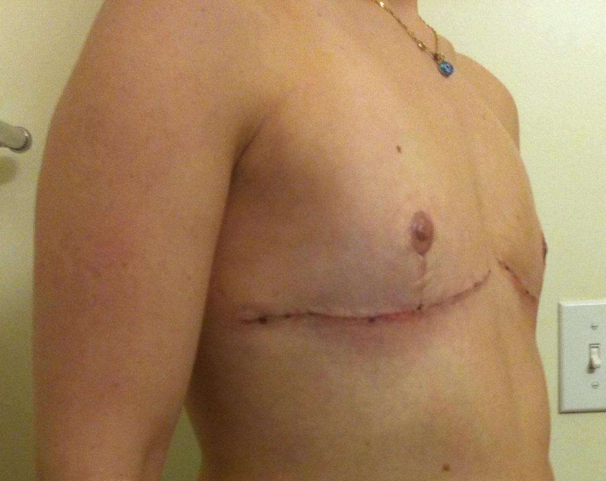 Top Surgery Week 3