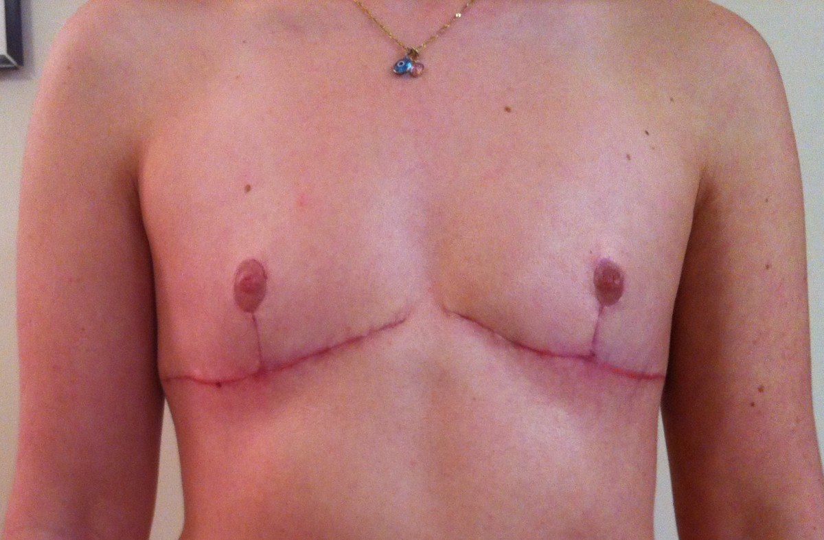Top Surgery Week 6