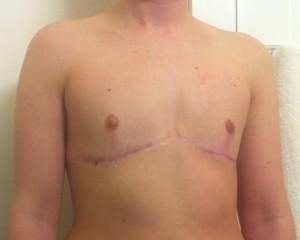 Top Surgery Year 1