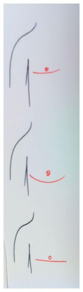 FTM Top Surgery DI Positioning