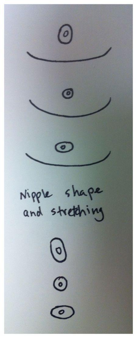 FTM Top Surgery Nipples