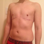 2 years post op!