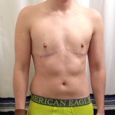 2 years post top surgery