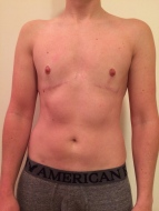 3 years top surgery - front