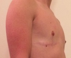 3 years top surgery - side