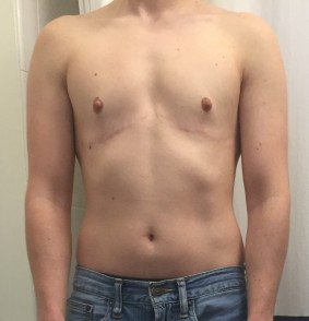 4.5 years post top surgery