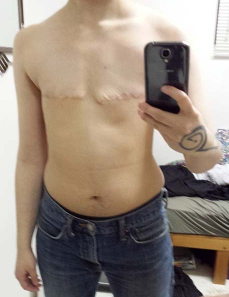 Top Surgery in Saskatchewan, no nipples